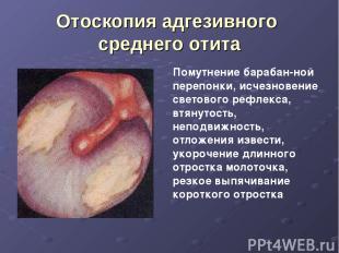 Отоскопия адгезивного среднего отита Помутнение барабан-ной перепонки, исчезнове