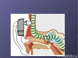 Презентация болезнь меньера