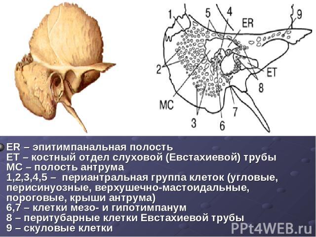 ER – эпитимпанальная полость ET – костный отдел слуховой (Евстахиевой) трубы MC – полость антрума 1,2,3,4,5 – периантральная группа клеток (угловые, перисинуозные, верхушечно-мастоидальные, пороговые, крыши антрума) 6,7 – клетки мезо- и гипотимпану…