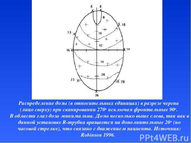 Распределение дозы (в относительных единицах) в разрезе черепа (лицо сверху) при сканировании 270o исключая фронтальные 90o. В области глаз доза минимальна. Дозы несколько выше слева, так как в данной установке R-трубка вращается на дополнительные 2…