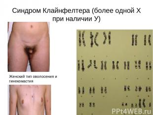 Синдром Клайнфелтера (более одной Х при наличии У) Женский тип оволосения и гине