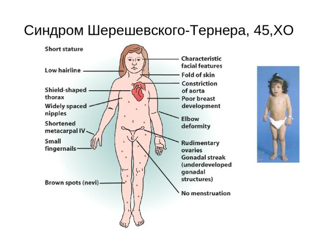 Синдром Шерешевского-Тернера, 45,ХО