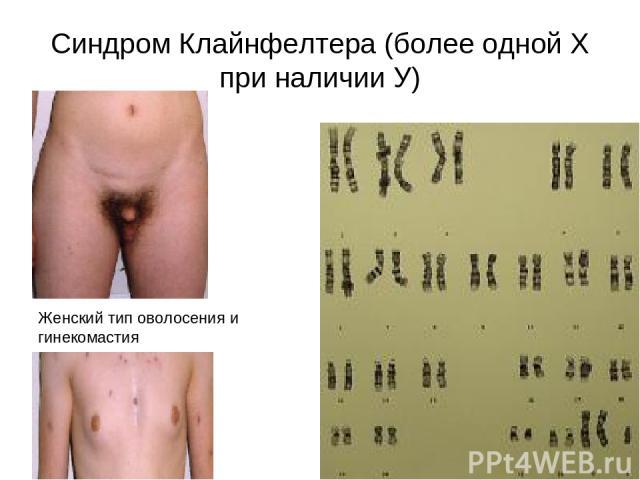 Синдром Клайнфелтера (более одной Х при наличии У) Женский тип оволосения и гинекомастия