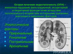 Острая почечная недостаточность (ОПН) – внезапное нарушение фильтрационной, экск