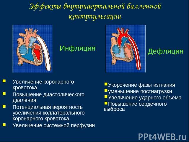 Эффекты внутриаортальной баллонной контрпульсации Инфляция Увеличение коронарного кровотока Повышение диастолического давления Потенциальная вероятность увеличения коллатерального коронарного кровотока Увеличение системной перфузии Дефляция Укорочен…