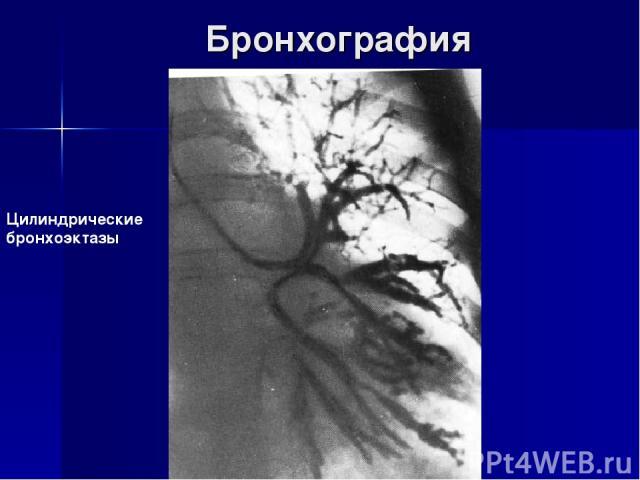Бронхография Цилиндрические бронхоэктазы