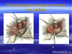 Ретроградная холецистэктомия «от шейки» 1 2