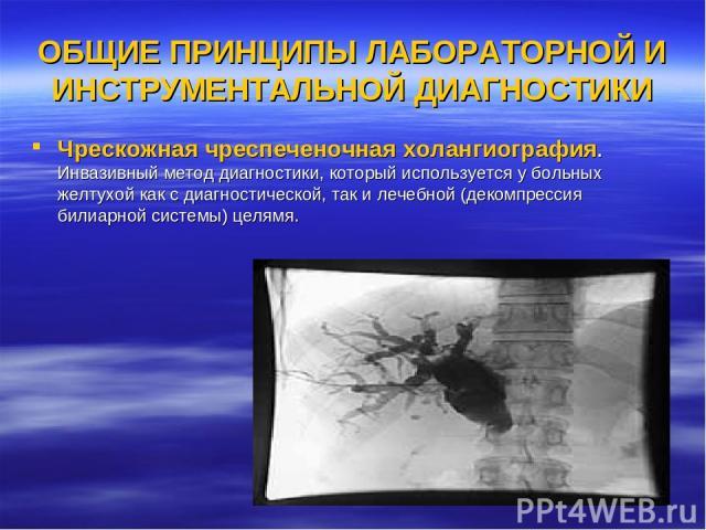 ОБЩИЕ ПРИНЦИПЫ ЛАБОРАТОРНОЙ И ИНСТРУМЕНТАЛЬНОЙ ДИАГНОСТИКИ Чрескожная чреспеченочная холангиография. Инвазивный метод диагностики, который используется у больных желтухой как с диагностической, так и лечебной (декомпрессия билиарной системы) целямя.