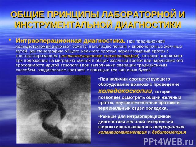 ОБЩИЕ ПРИНЦИПЫ ЛАБОРАТОРНОЙ И ИНСТРУМЕНТАЛЬНОЙ ДИАГНОСТИКИ Интраоперационная диагностика. При традиционной холецистэктомии включает осмотр, пальпацию печени и внепеченочных желчных путей, рентгенографию общего желчного протока через пузырный проток …
