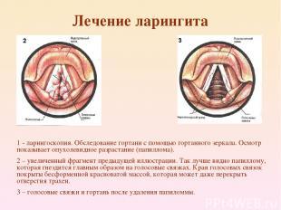 Лечение ларингита 1 - ларингоскопия. Обследование гортани с помощью гортанного з