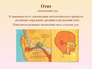 Отит – воспаление уха В зависимости от локализации патологического процесса разл