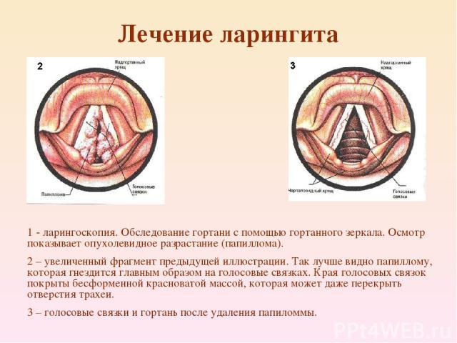 Лечение ларингита 1 - ларингоскопия. Обследование гортани с помощью гортанного зеркала. Осмотр показывает опухолевидное разрастание (папиллома). 2 – увеличенный фрагмент предыдущей иллюстрации. Так лучше видно папиллому, которая гнездится главным об…