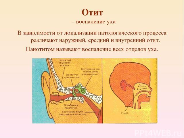 Отит – воспаление уха В зависимости от локализации патологического процесса различают наружный, средний и внутренний отит. Панотитом называют воспаление всех отделов уха.