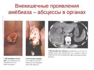 Внекишечные проявления амёбиаза – абсцессы в органах