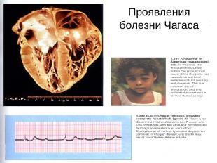 Symptoms of African and American trypanosomiasis Проявления болезни Чагаса