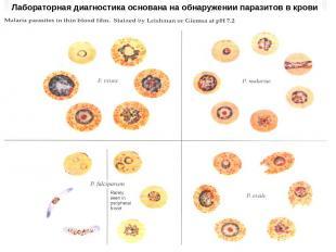 Лабораторная диагностика основана на обнаружении паразитов в крови