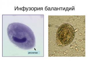 Инфузория балантидий реснички