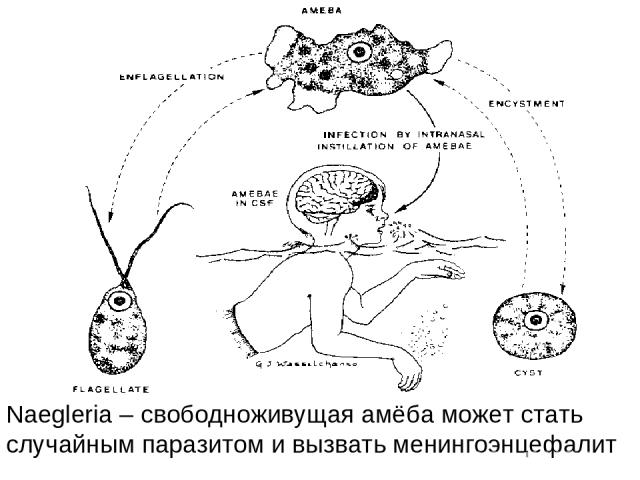 Naegleria – свободноживущая амёба может стать случайным паразитом и вызвать менингоэнцефалит