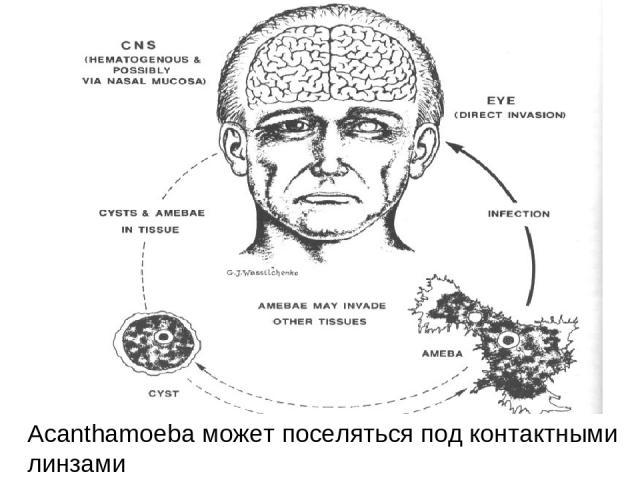 Acanthamoeba может поселяться под контактными линзами