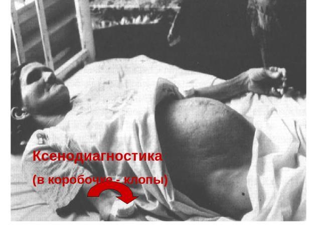 Ксенодиагностика (в коробочке - клопы)