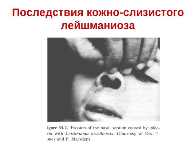 Последствия кожно-слизистого лейшманиоза