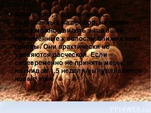 Кроме того, у корней волос, разобранных на пробор, на ярком свету можно увидеть