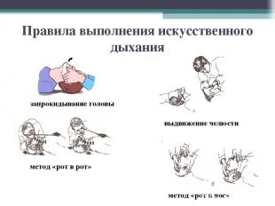 Правила выполнения искусственного дыхания метод «рот в рот» метод «рот в нос» за