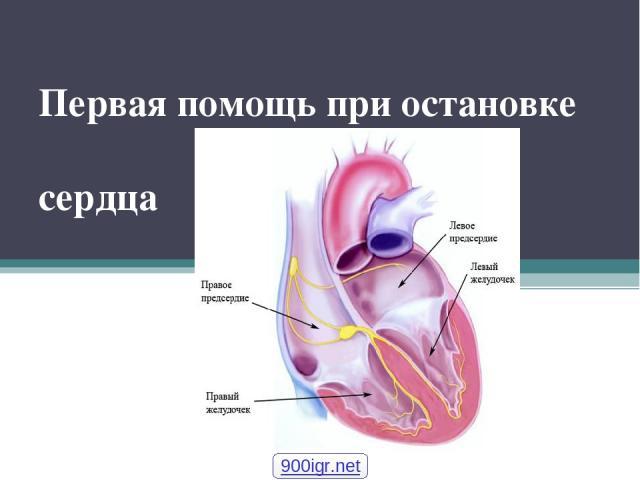 Первая помощь при остановке сердца 900igr.net