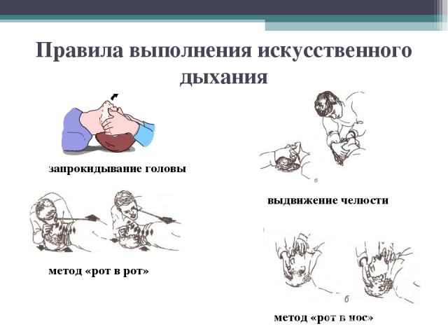 Правила выполнения искусственного дыхания метод «рот в рот» метод «рот в нос» запрокидывание головы выдвижение челюсти