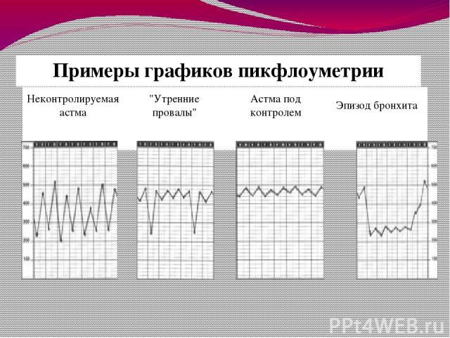 Примеры графиковпикфлоуметрии Неконтролируемая астма