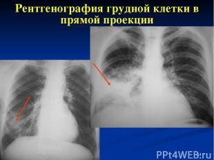 * Рентгенография грудной клетки в прямой проекции