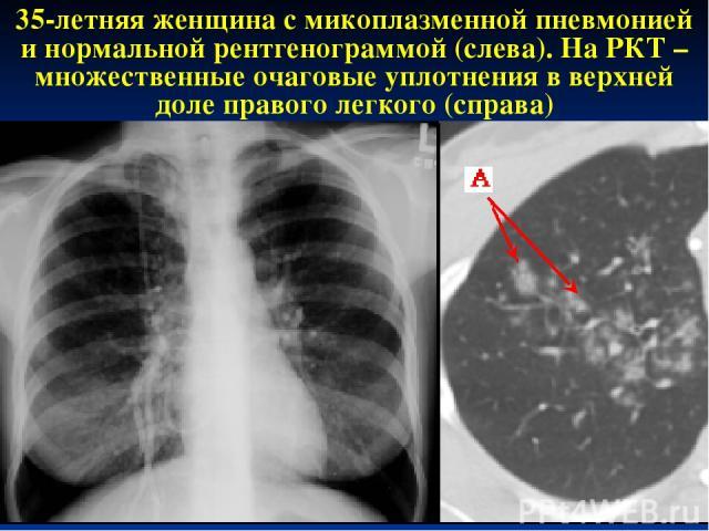 * 35-летняя женщина с микоплазменной пневмонией и нормальной рентгенограммой (слева). На РКТ – множественные очаговые уплотнения в верхней доле правого легкого (справа)