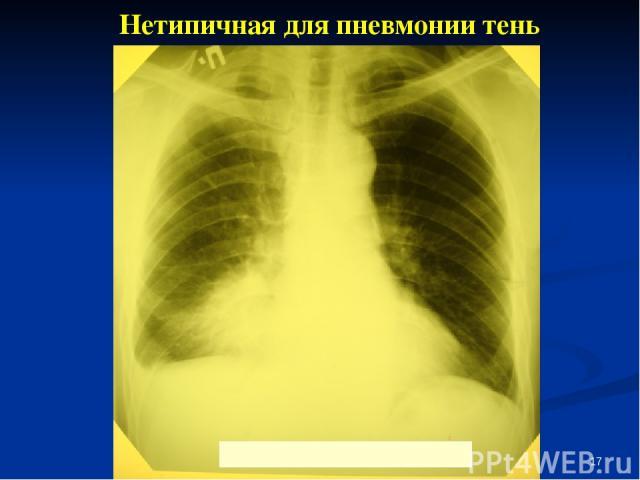 * Нетипичная для пневмонии тень
