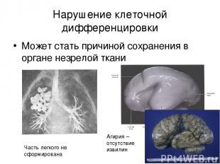 Нарушение клеточной дифференцировки Может стать причиной сохранения в органе нез