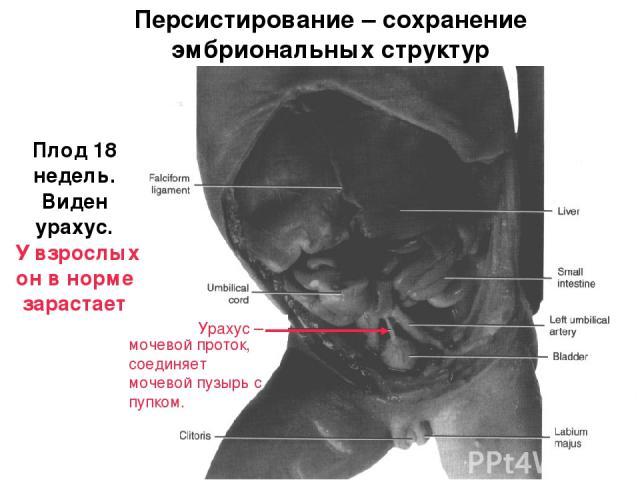 Плод 18 недель. Виден урахус. У взрослых он в норме зарастает Персистирование – сохранение эмбриональных структур Урахус – мочевой проток, соединяет мочевой пузырь с пупком.