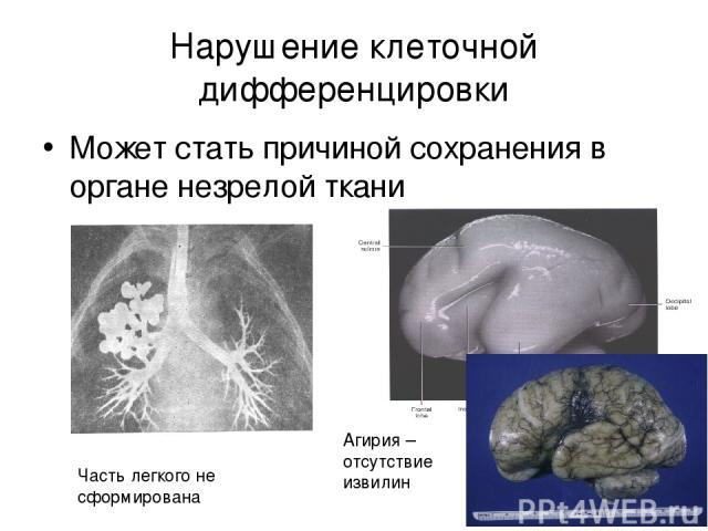 Нарушение клеточной дифференцировки Может стать причиной сохранения в органе незрелой ткани Часть легкого не сформирована Агирия – отсутствие извилин