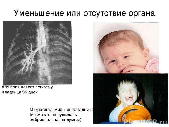 Уменьшение или отсутствие органа Агенезия левого легкого у младенца 36 дней Микрофтальмия и анофтальмия (возможно, нарушилась эмбриональная индукция)