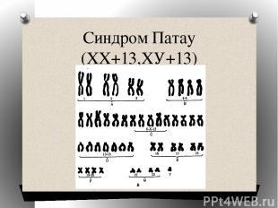 Синдром Патау (ХХ+13,ХУ+13)