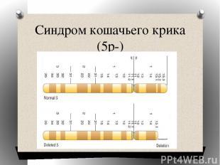 Синдром кошачьего крика (5р-)