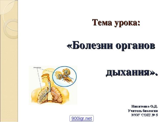Тема урока: «Болезни органов дыхания». Никитенко О.Д. Учитель биологии МОУ СОШ № 5 900igr.net