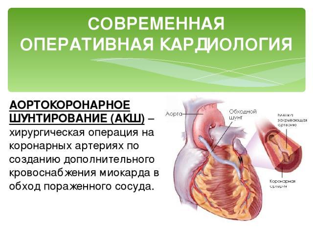 СОВРЕМЕННАЯ ОПЕРАТИВНАЯ КАРДИОЛОГИЯ АОРТОКОРОНАРНОЕ ШУНТИРОВАНИЕ (АКШ) – хирургическая операция на коронарных артериях по созданию дополнительного кровоснабжения миокарда в обход пораженного сосуда.