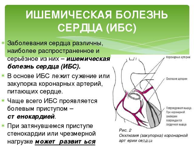 Заболевания сердца различны, наиболее распространенное и серьёзное из них – ишемическая болезнь сердца (ИБС). В основе ИБС лежит сужение или закупорка коронарных артерий, питающих сердце. Чаще всего ИБС проявляется болевым приступом – стенокардией. …
