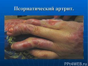 Псориатический артрит.