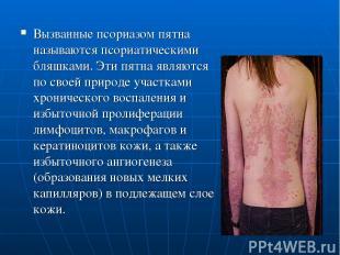 Вызванные псориазом пятна называются псориатическими бляшками. Эти пятна являютс