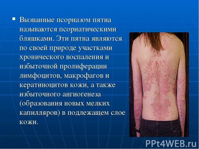 Вызванные псориазом пятна называются псориатическими бляшками. Эти пятна являются по своей природе участками хронического воспаления и избыточной пролиферации лимфоцитов, макрофагов и кератиноцитов кожи, а также избыточного ангиогенеза (образования …