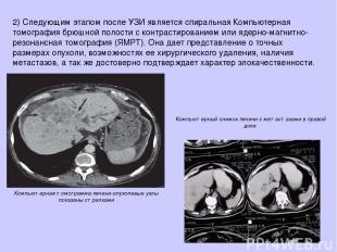 2)Следующим этапом после УЗИ является спиральная Компьютерная томография брюшно