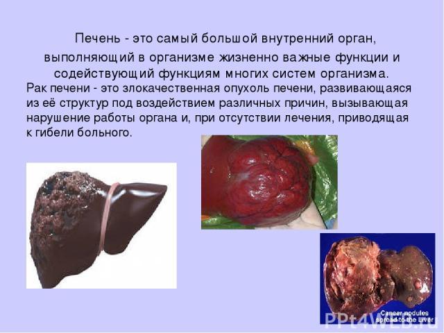 Печень - это самый большой внутренний орган, выполняющий в организме жизненно важные функции и содействующий функциям многих систем организма. Рак печени - это злокачественная опухоль печени, развивающаяся из её структур под воздействием различных п…