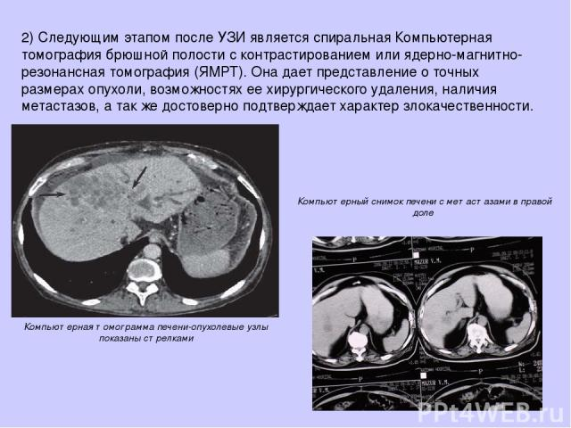 2)Следующим этапом после УЗИ является спиральная Компьютерная томография брюшной полости с контрастированием или ядерно-магнитно-резонансная томография (ЯМРТ). Она дает представление о точных размерах опухоли, возможностях ее хирургического удалени…