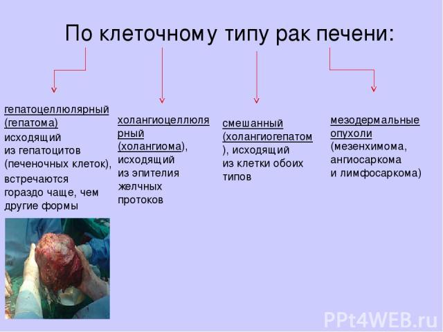 Поклеточному типурак печени: гепатоцеллюлярный (гепатома) исходящий изгепатоцитов (печеночных клеток), холангиоцеллюлярный (холангиома), исходящий изэпителия желчных протоков смешанный (холангиогепатом), исходящий изклетки обоих типов мезодерма…