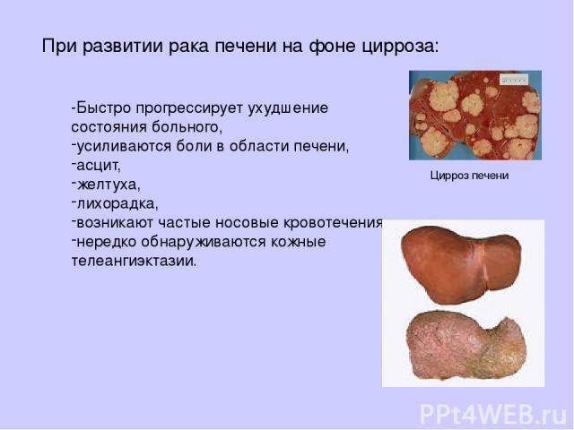 При развитии рака печени нафоне цирроза: -Быстро прогрессирует ухудшение состояния больного, усиливаются боли вобласти печени, асцит, желтуха, лихорадка, возникают частые носовые кровотечения, нередко обнаруживаются кожные телеангиэктазии. Цирроз печени
